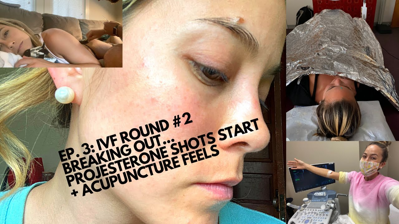 IVF #2 Ep. 3: Skin breakouts, PIO shots, acupuncture
