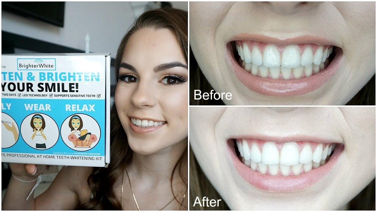 Brighter White Teeth Whitening Catherine Freeman Youtube