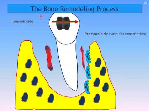 Dental Treatment: Accelerated Orthodontics Dec 13, 2016
