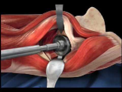 Anterior Hip Replacement Animation Youtube
