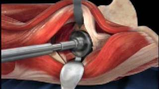 Anterior Hip Replacement Animation