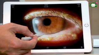 【心視台】香港眼科專科醫生 鄧維達醫生 眼皮炎的成因和治療方法