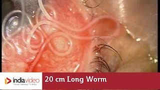 20 cm Long Worm In The Human Eye, First Ever Recorded On Video | India Video thumbnail