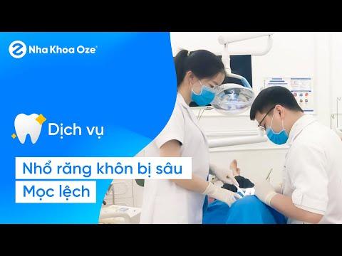 [Trực tiếp] Nhổ răng khôn bị sâu mọc lệnh của anh Tứ - Đại tá Bác sĩ Nguyễn Qúy Tuệ