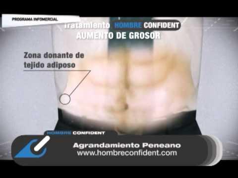elongacion peneana en argentina