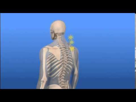 Car Accident Injury Videos