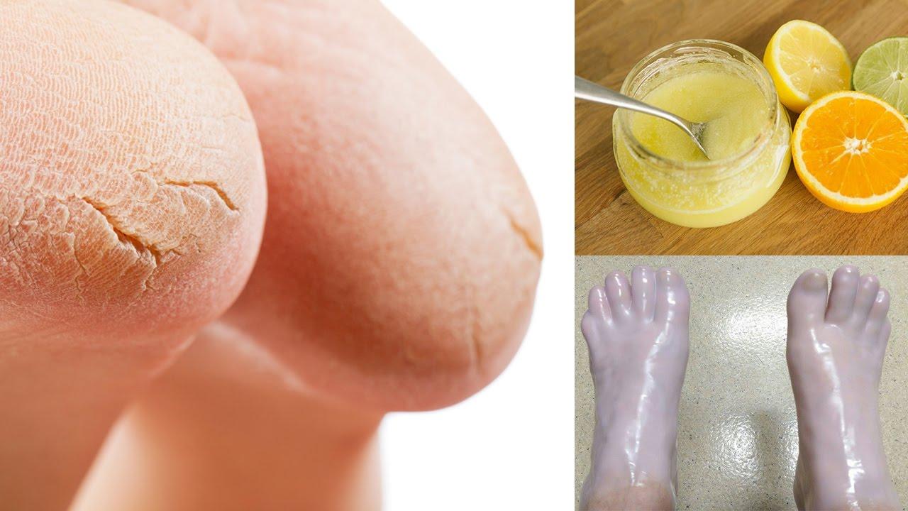 "Результат пошуку зображень за запитом ""How to Cope With Dry Skin and Cracks on Your Feet"""