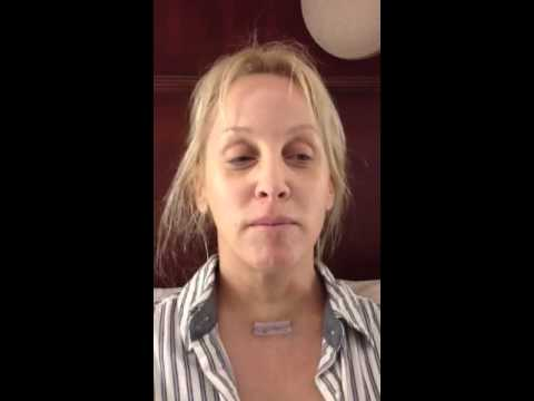 Parathyroid surgery: 12 hrs after tumor removal w Dr. James Norman