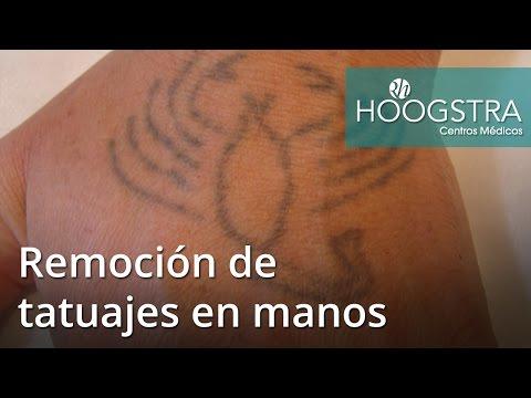 Remoción de tatuajes en manos (16164)