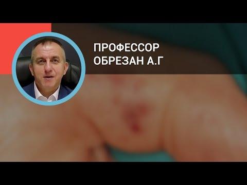 Профессор Обрезан А.Г.: Эндокардиты: диагностика и лечение
