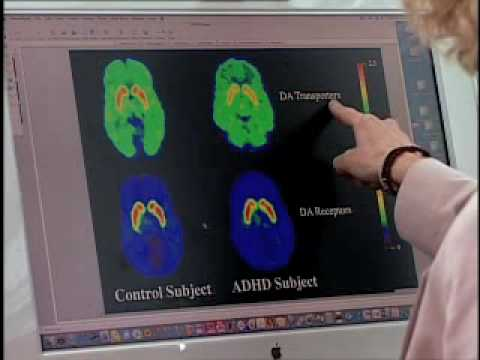 Brain imaging gives new insight into underlying cause of ADHD