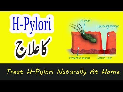 How Can I Treat H Pylori Naturally