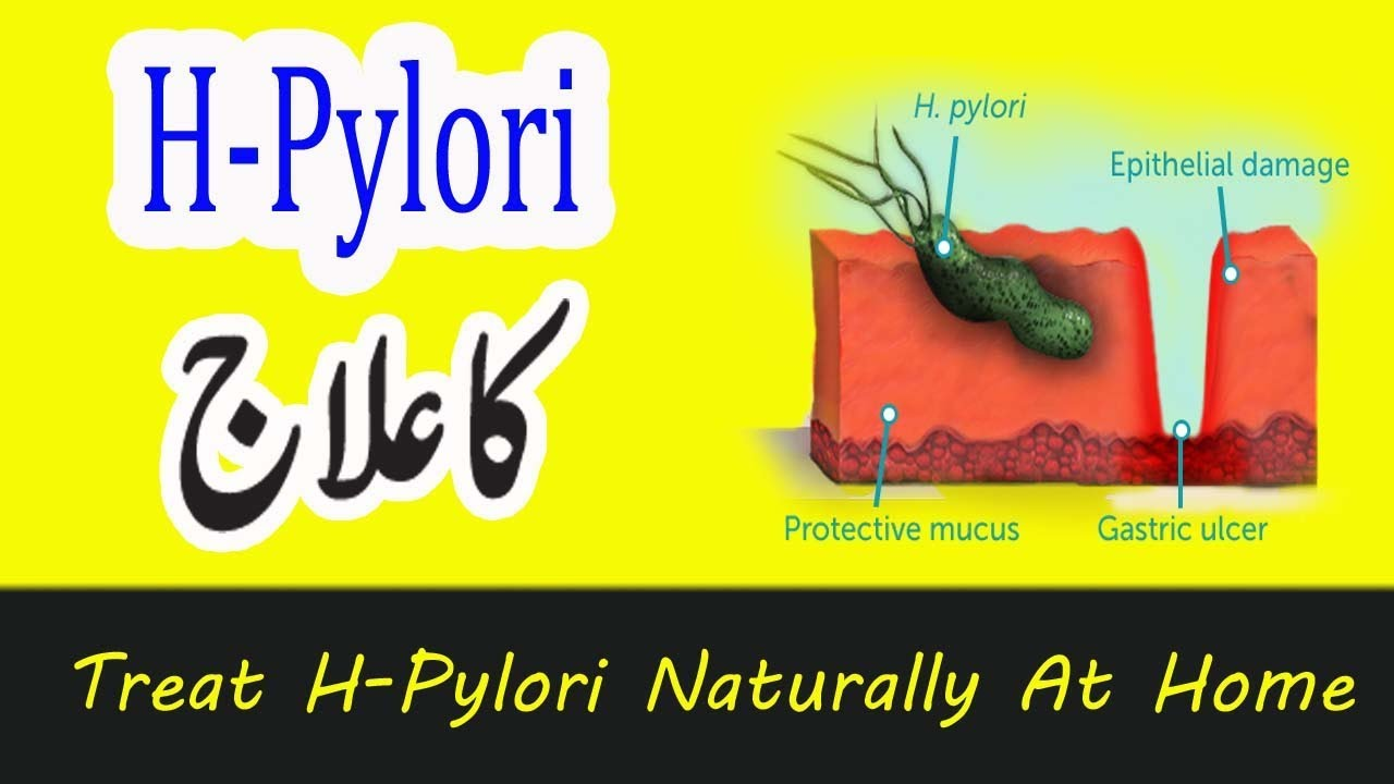 Treat H Pylori naturally at home