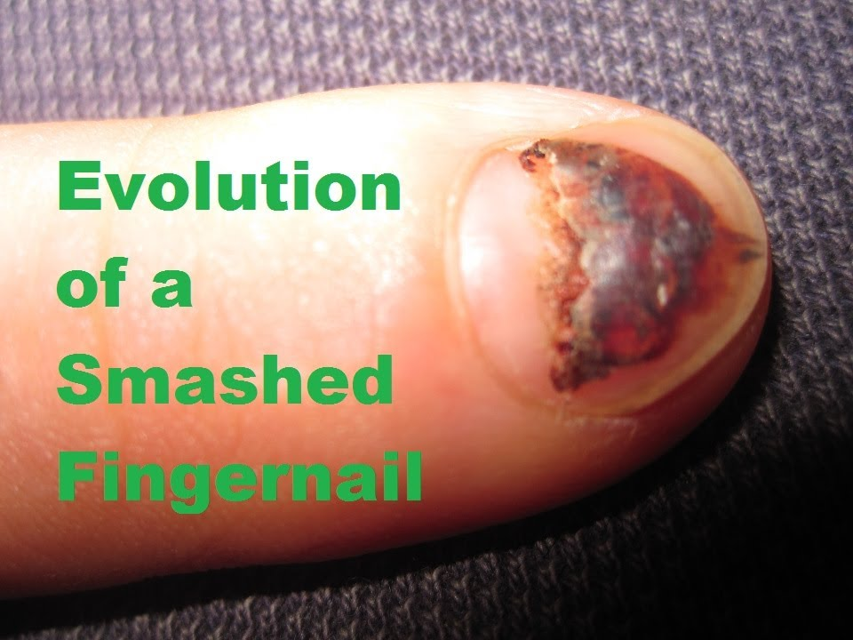 Evolution of a Smashed Fingernail