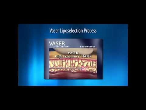 Sculpting the Body with Vaser Liposuction