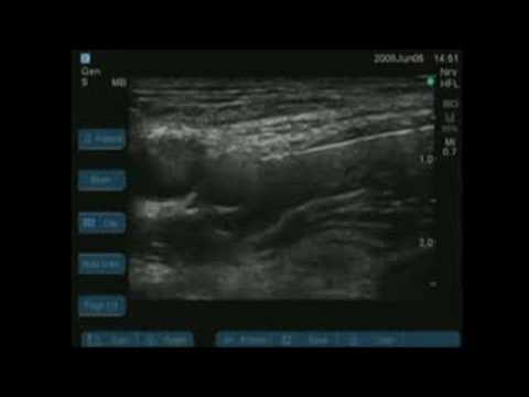 ultrasound-guided femoral nerve block - youtube, Muscles