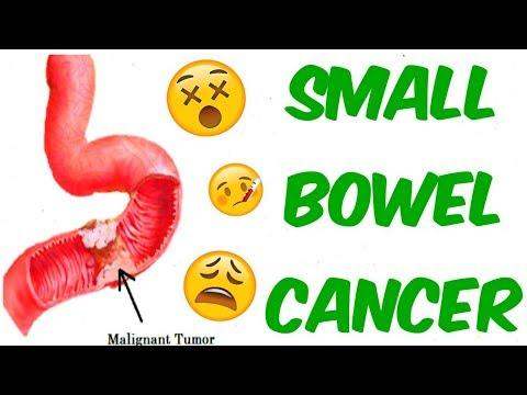Intestinal Cancer (Small Bowel Adenocarcinomas, Sarcomas, Carcinoids, GISTs And Lymphomas)