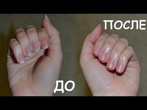 Дистрофия ногтей Bella Estetica
