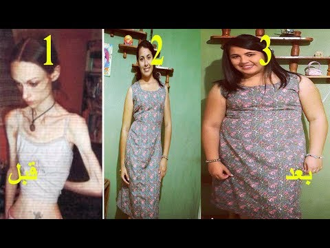 زيادة الوزن 4 كيلو في الاسبوع نصيحة لوجه الله /علاج النحافة و تسمين الجسم /بسرعة من 41 الى 65 كيلو