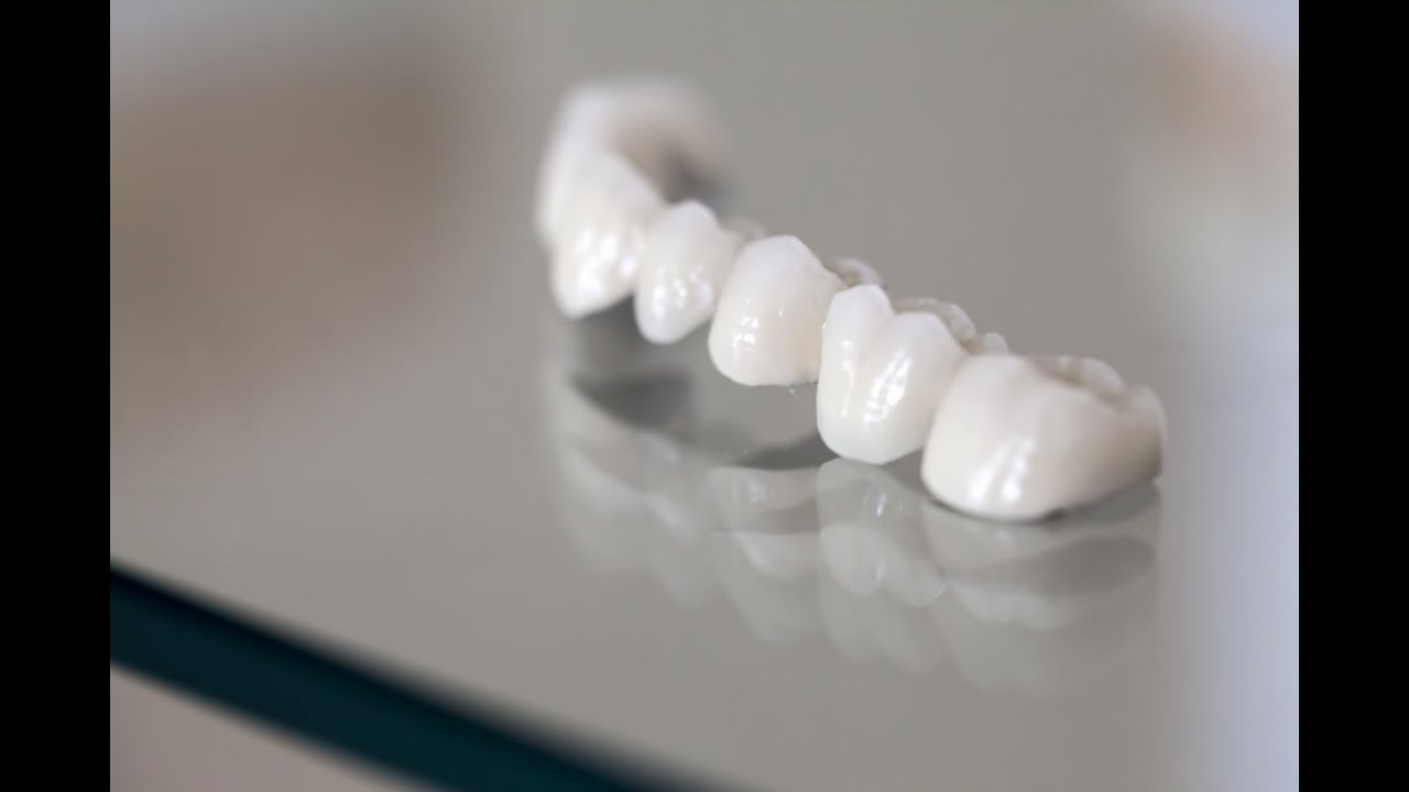 Types of Dental Bridges and the Proper Ways to Maintain It - YouTube