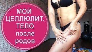 Восстановление после родов: как похудеть и вернуть фигуру? Опыт многодетной мамы