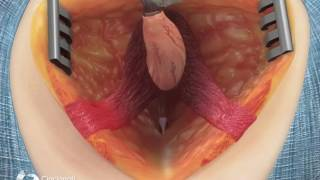 Posterior Surgical Repair of Bulbar Urethral Fistula | Cincinnati Children's