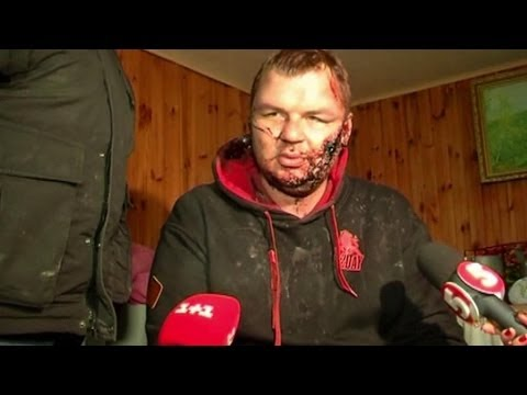 Dmytro Boulatov, l'Ukrainien torturé raconte son calvaire - 01/01