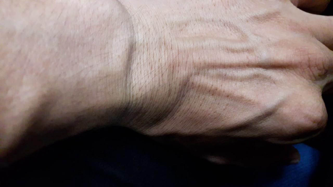hogyan lehet gyorsan gyógyítani a lábak varikózisát kakukkfű visszér ellen