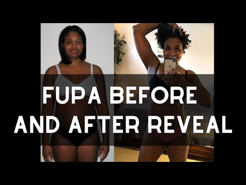 Fupa Before and After 40-lb Weight Loss   No Tummy Tuck