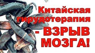 10 ФАКТОВ ИЗ КИТАЙСКОЙ ГИРУДОТЕРАПИИ, ЭКСТРАКТ СУХОЙ ПИЯВКИ, ПИЯВИТ