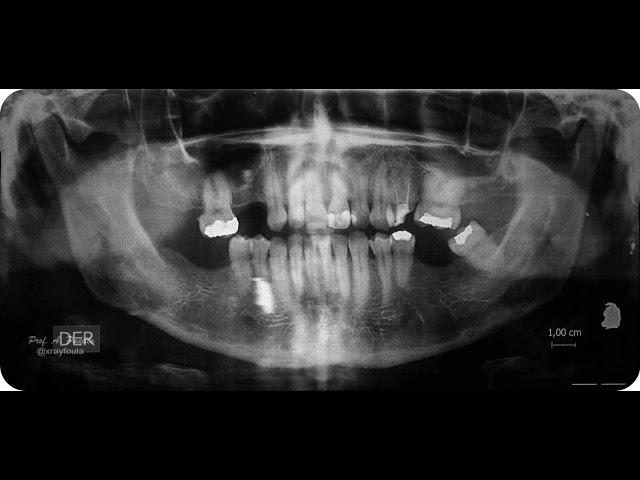 Imagen fantasma en radiografía panorámica |