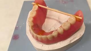 Repair-it-denture