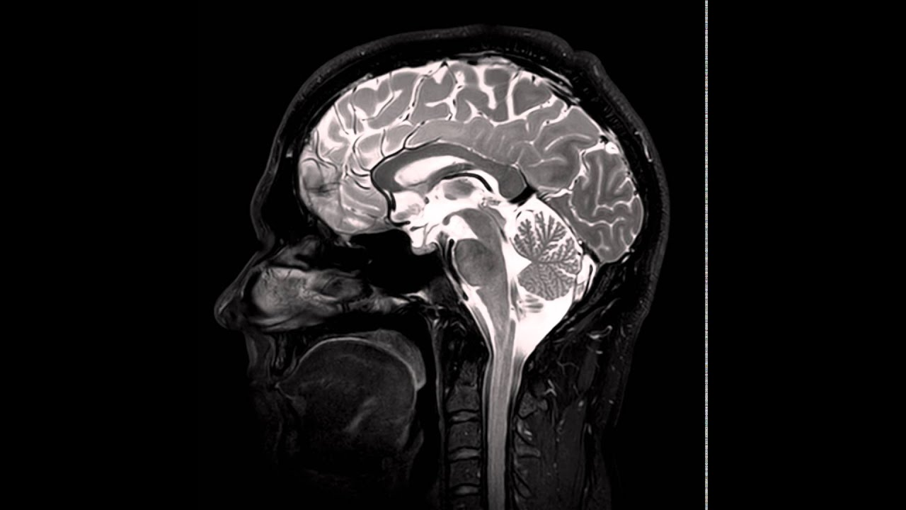 Sagittal T2 of the Brain (from Imaging Anatomy of the Human Brain ...