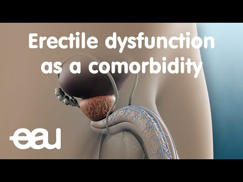 Erectile dysfunction as