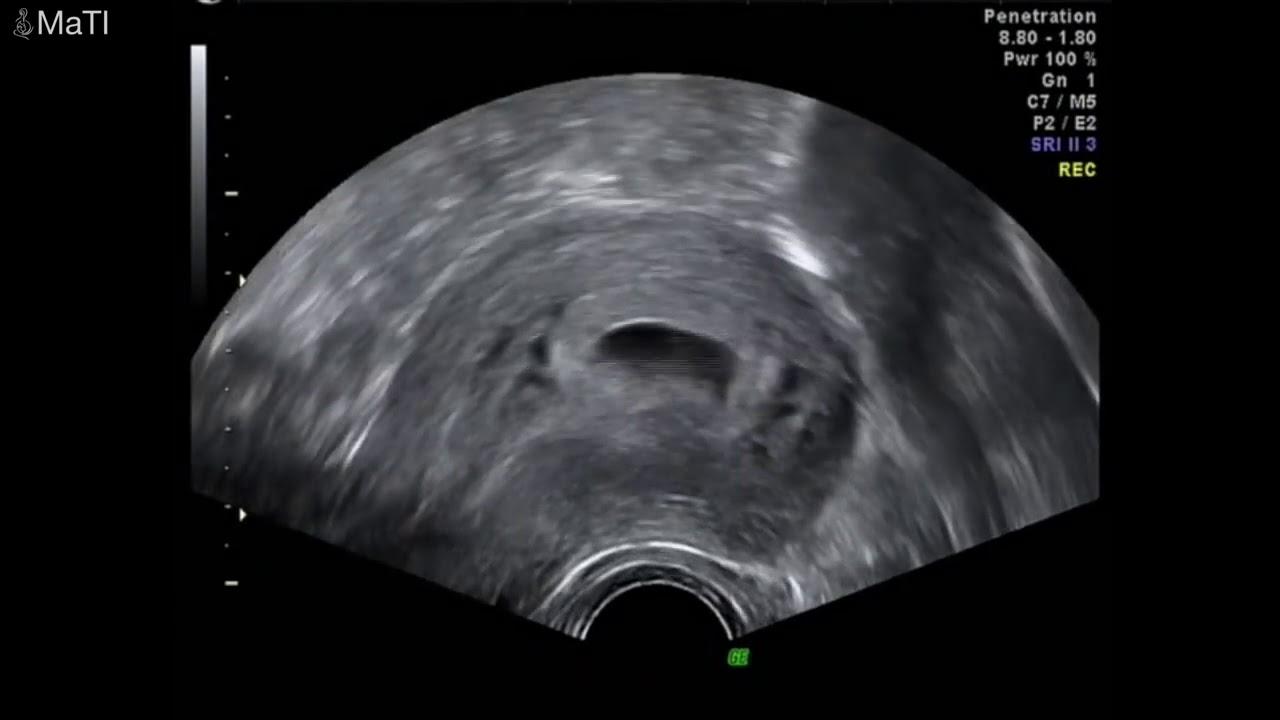 سونار الحمل الاسبوع من الخامس وحتي التاسع Youtube