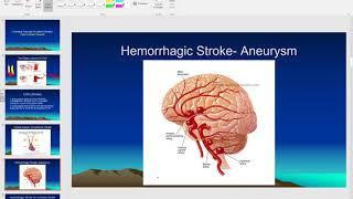 Pathophysiology of cerebral vascular accident (stroke)