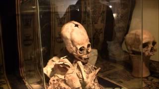 2 American Doctors Inspect Presumed Alien Skeleton