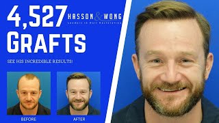 Hair Transplant 4,527 Grafts | Hasson & Wong Testimonial