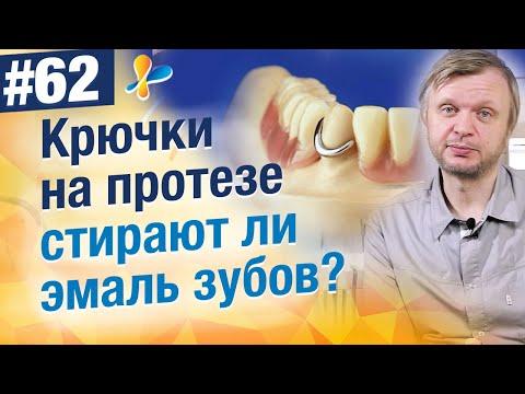Стирают ли эмаль зубов крючки на протезе (кламмера)?