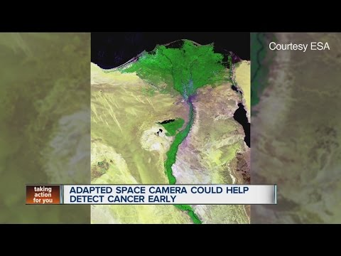 Space satellite camera could help detect skin diseases early