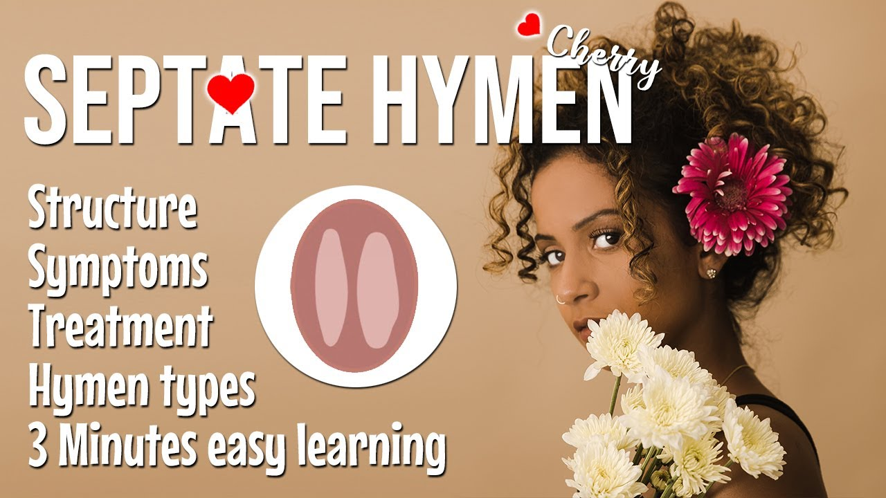 Septate hymen structure, causes, symptoms, treatment, types of hymen | Female reproductive system