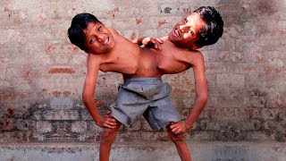 UNUSUAL Conjoined Twins You Won't Believe Exist
