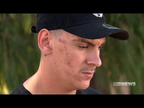 Brutality Claims   9 News Perth