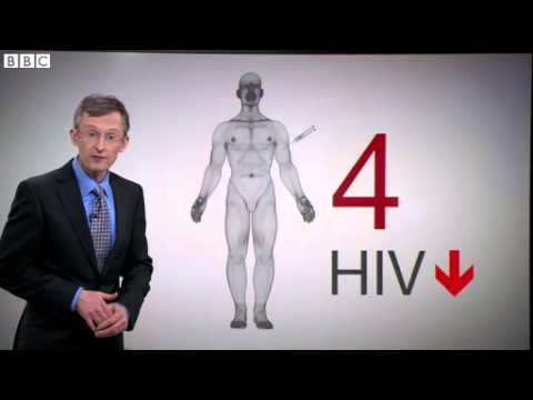 BBC News   HIV  Gene therapy breakthrough patients on medication