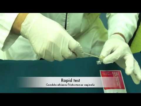 Rapid test Candida albicans & Trichomonas vaginalis