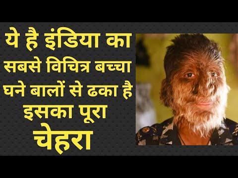 ये है इंडिया का सबसे विचित्र बच्चा, घने बालों से ढका है इसका पूरा चेहरा, Lalit Patidar 13Y Old Boy