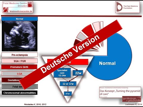 Dr. Robert Lachmann / Deutsche Version / fetalmedicinecentre.de / Fetal Medicine Centre Dresden