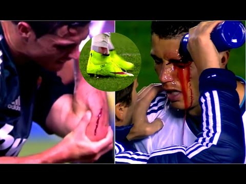 Cristiano Ronaldo ► Top 5 Horror Injuries ever in his Career | HD