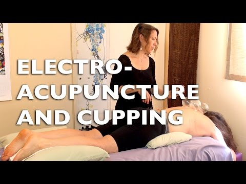 Electro-acupuncture and Cupping