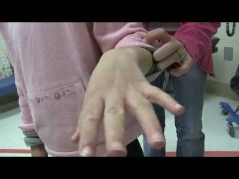 a-family-scabies-infestation